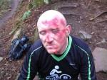 Cuts from mountain bike crash at Cwm Carn